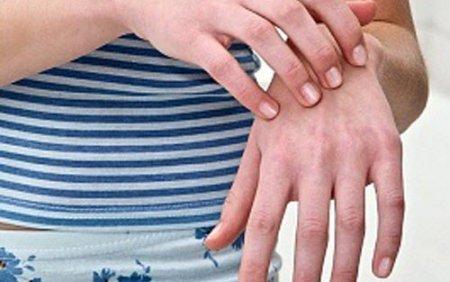 皮膚のかゆみ、発疹